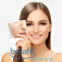 Bellafill® Dermal Filler for Acne Scars