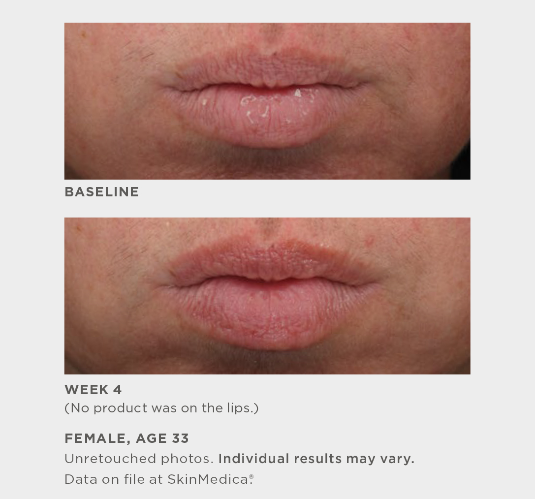 HA5 Smooth & Plump Lip System by SkinMedica #4